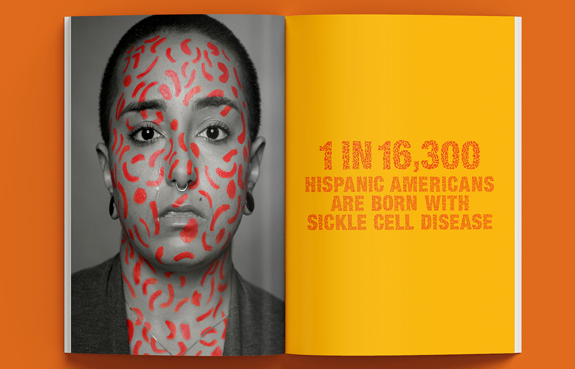 FoundationSickleCellDiseaseResearch_PitchBook_1